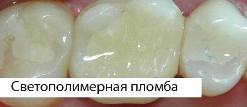 Светополимерная пломба в зубе