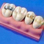 Из чего делают пломбу для зуба, состав