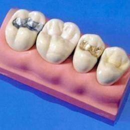Виды пломб в зубах