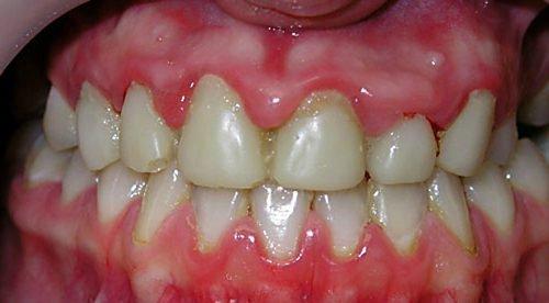 Воспаление сосочков - гингивит