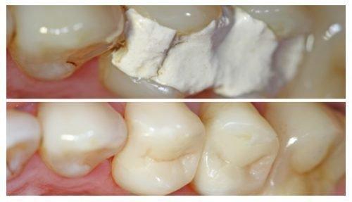 Временная и постоянная пломбы в зубах