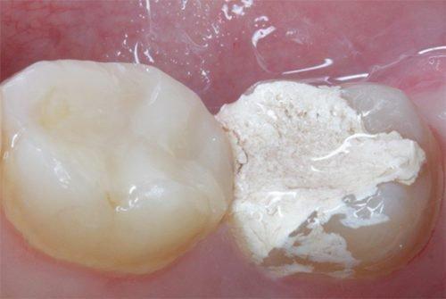 Временная пломба в зубе