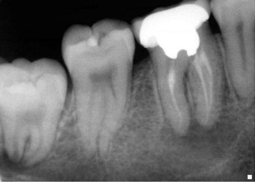 Запломбированные каналы в зубе