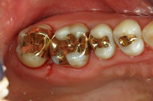 Золотые амальгамные пломбы в зубах