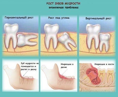 Возможные проблемы с ростом зуба мудрости