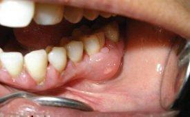 Причины боли в десне в конце нижней челюсти