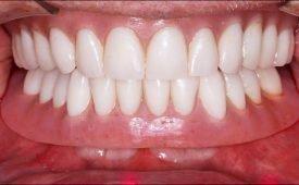 Что делать когда зубной протез натирает десну