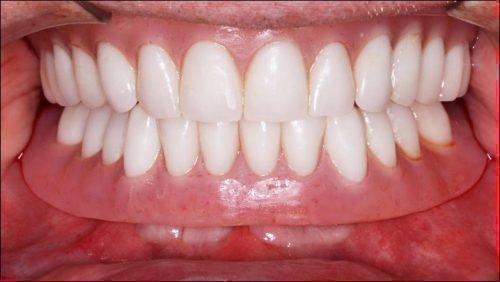 Дискомфорт при ношении протеза зубов