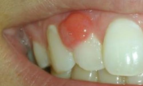 Фото воспаления корня зуба