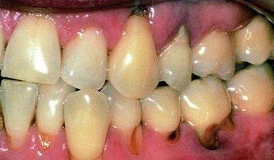 Воспаление у корня зуба
