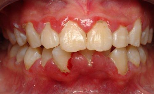 Около зубов опули десна