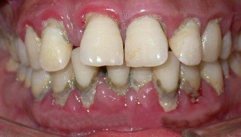 Пародонтит в районе верхних и нижних зубов