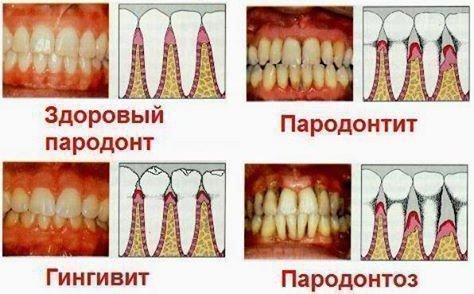 Пародонтит, гингивит, пародонтоз
