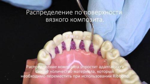 Шинирование композитом зубов