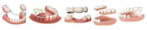 Протезирование зубов - виды протезов