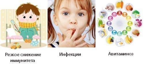 Причины воспалений десен у детей