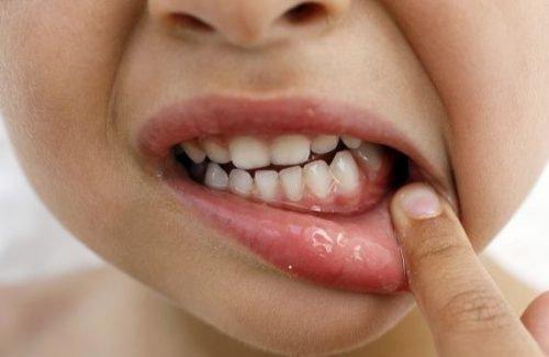 Стоматит на десне у ребенка