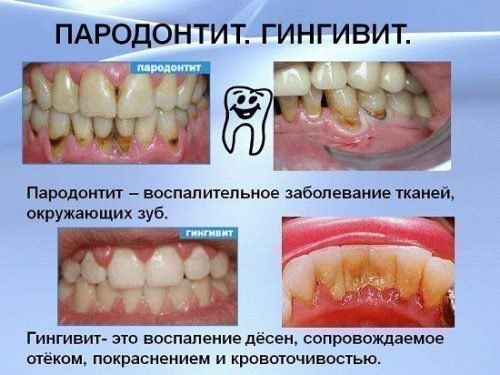 Воспаления десен - гингивит и периодонтит
