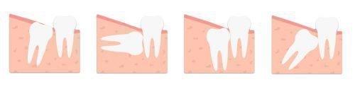 Положения роста зубов мудрости