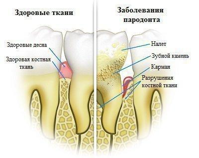 Пародонт - заболевание десен
