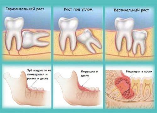 Как растет зуб мудрости