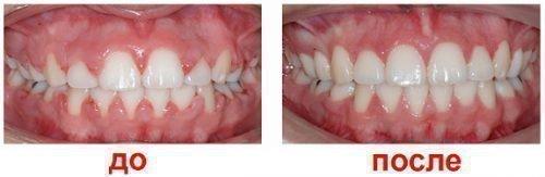 До и После лечения