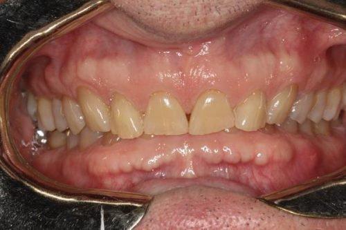 Многочисленные экзостозы из-за бруксизма зубов