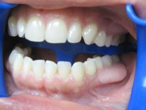 Экзостоз у здорового зуба сбоку