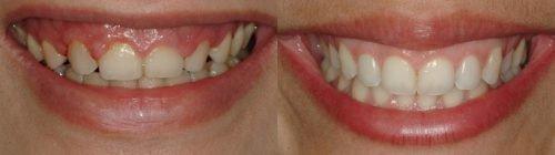 до и после лечения лазером