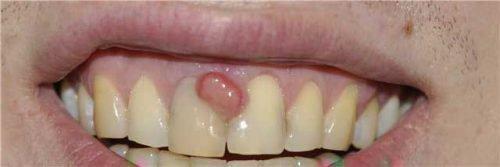 Шишка над зубом (нарыв)