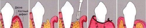 Удаление экзостоза - порядок