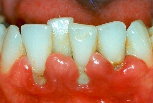 Десна возле зубов воспалены