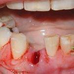 Обезболивание десны после удаления зуба