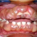 Причины фиброматоза десен и его лечение