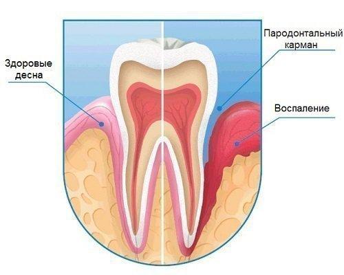 Пародонтит десны у зуба
