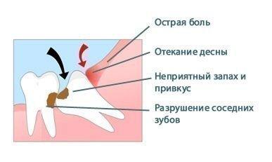 Симптомы перикоронита у зуба