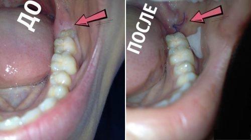 До и после удаления зуба восьмерки