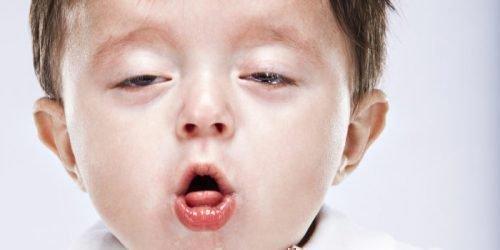 Ребенок поперхнулся выпавшим зубом