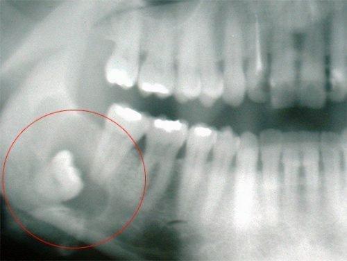 Неправильное прорезывание зуба мудрости - снимок