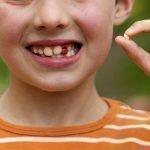 Что делать, если ребенок проглотил зуб