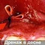 Необходимость установки дренажа после разрезания десны