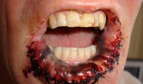 4 стадия раковой опухоли на поверхности губы