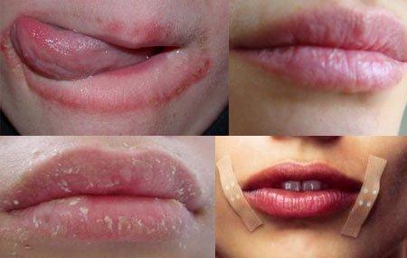 Болезненная сухость губ