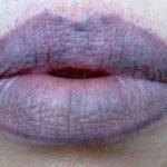 Причины посинения губ