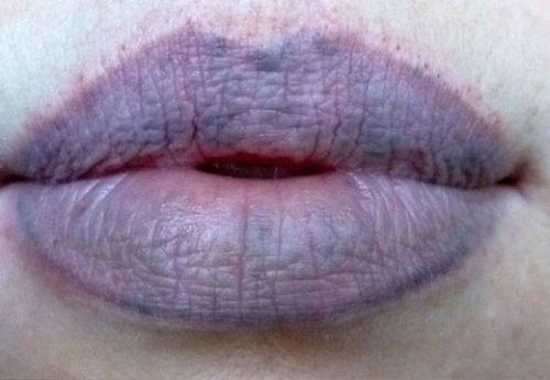 Синеют губы