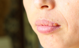 Можно ли заразиться вирусом от носителя герпеса на губах