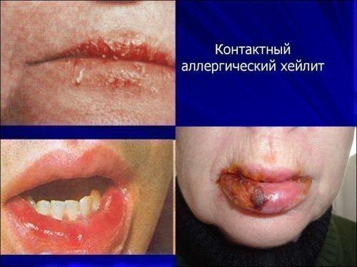Аллергический хейлит. проявления