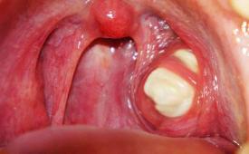 Причины белых комочков во рту с неприятным запахом